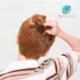 Seu filho está perdendo cabelo?