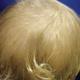 Minha bebê tem cabelos ralos e que não crescem. Devo me preocupar?