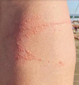 Lesão típica de queimadura por água viva na perna.