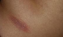 "Pitiríase rósea: Mancha eritematosa constituindo o ""medalhão""."