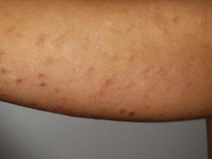 Pitiríase liquenóide: pequenas pápulas e manchas avermelhadas com leve descamação em braço.