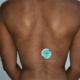 Manchas acinzentadas pelo corpo – o que é Dermatose Cinzenta?