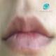 5 dicas para preenchimento de lábios com aspecto natural em pacientes jovens